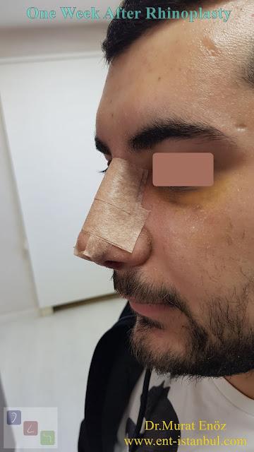 One Week After Male Rhinoplasty