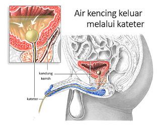 Infeksi saluran kemih - Gejala, penyebab dan mengobati, Penyebab Infeksi Saluran Kemih, 4 Penyebab Infeksi Saluran Kencing pada Wanita, 11 Cara Mengobati Infeksi Saluran Kemih Secara Tradisional