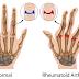Pengobatan Terapi Lintah untuk Mengobati Arthritis
