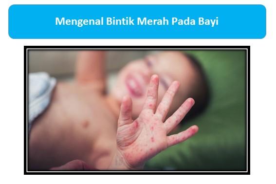 Mengenal Bintik Merah Pada Bayi