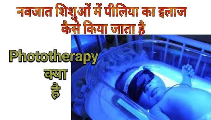 Phototherapy-नवजात शिशु में पीलिया का इलाज कैसे करते है ?