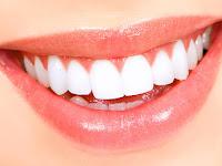 Beberapa Penyebab Gigi Sering Ngilu