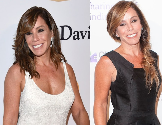 Melissa Rivers Plastic Surgery Before and After Photos