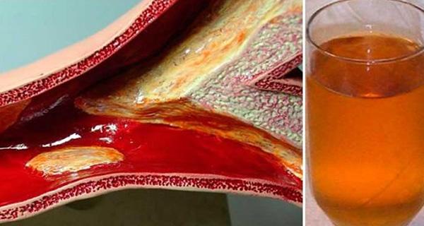 como destapar las arterias