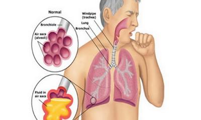 Inilah Gejala Penyakit TBC dan Pencegahannya   Roliyan.com
