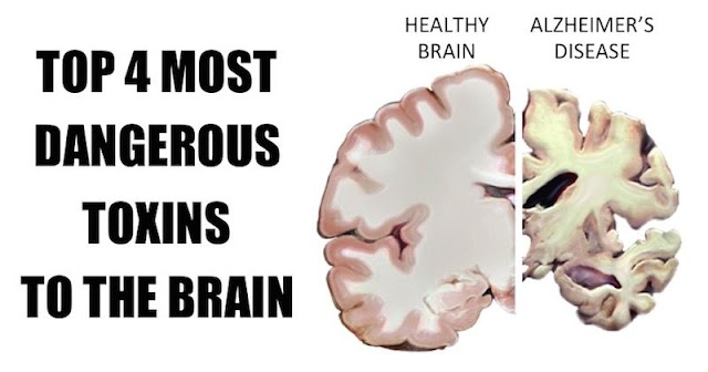 Top 4 Most Dangerous Toxins In The Brain. Should be Avoided At All Costs!