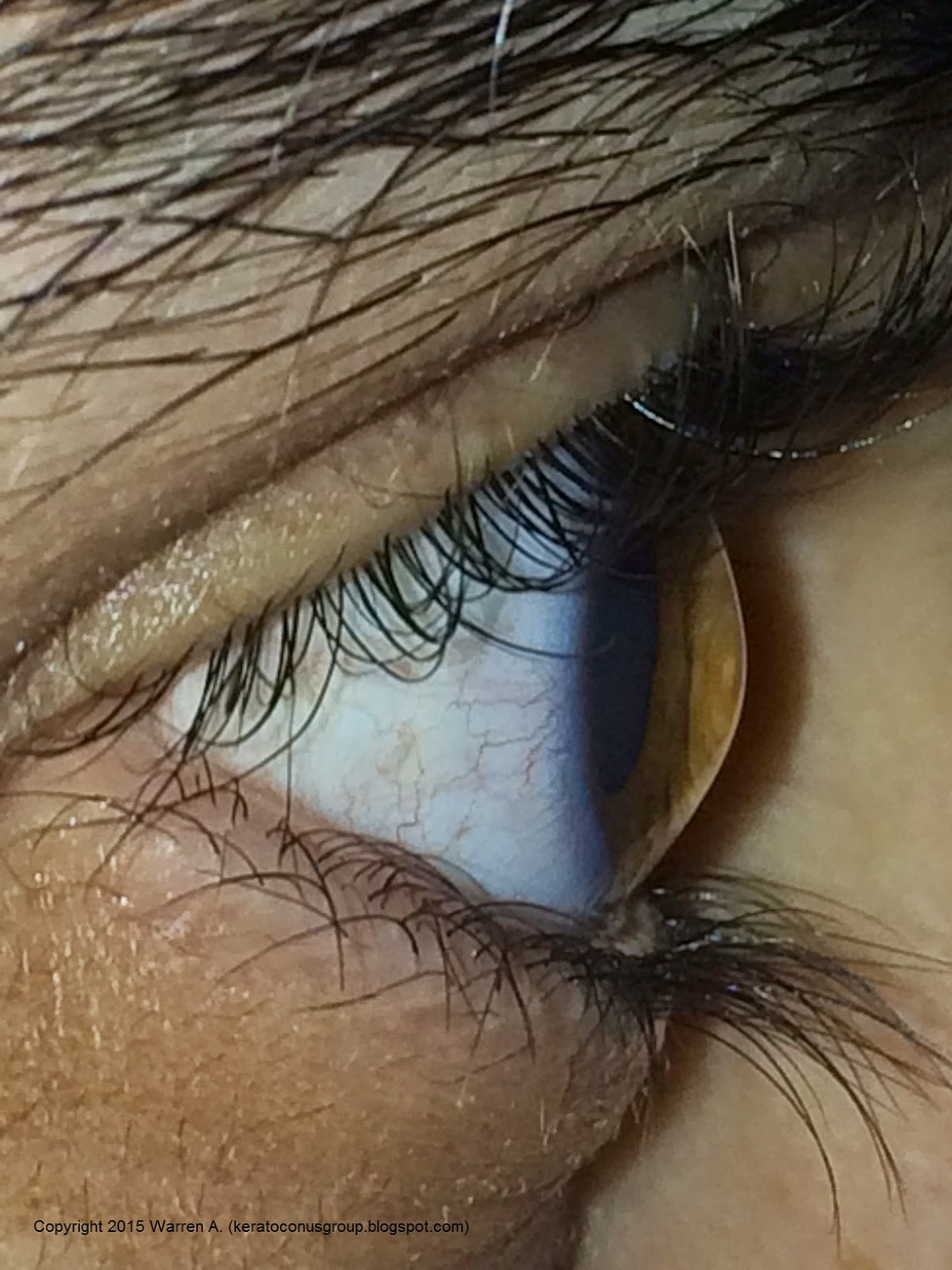 Side view of the cornea in a patient with keratoconus. Photo by Warren A., a member of our Facebook community