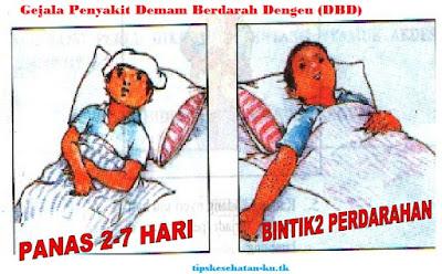 Gejala Demam Berdarah Dengeu
