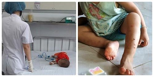 An Giang: Bé trai 8 tuổi trút hơi thở cuối sau 5 năm vật vã vì bị hàng xóm chích kim tiêm vào chân