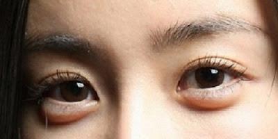 8 Tips alami Mengatasi Kantung Mata (Eye Bag)