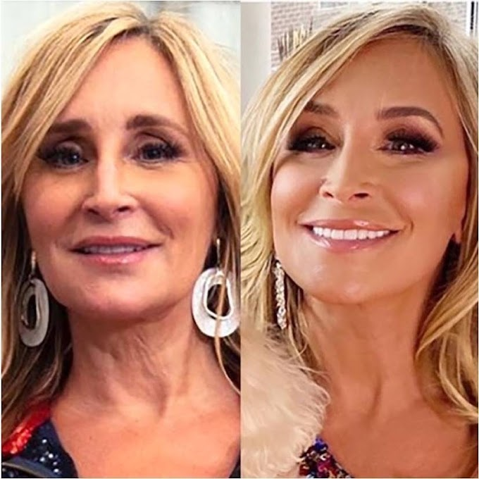 Sonja Morgan Debuts $75,000 Facelift And Neck Lift! See Before And After Plastic Surgery Photos!