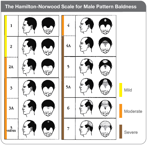 "Male Pattern Baldeness :  Definifition  Male pattern baldness is the most common type of hair loss in men. It usually follows a typical pattern of receding hairline and hair thinning on the crown, and is caused by hormones and genetic predisposition.   Alternative Names  Alopecia in men; Baldness - male; Hair loss in men; Androgenetic alopecia  Causes • Hair grows about an inch every couple of months. Each hair grows for 2 to 6 years, remains at that length for a short period, then falls out. A new hair soon begins growing in its place. At any one time, about 85% of the hair on your head is in the growing phase and 15% is not. • Each hair sits in a cavity in the skin called a follicle. Baldness in men occurs when the follicle shrinks over time, resulting in shorter and finer hair. The end result is a very small follicle with no hair inside. Ordinarily, hair should grow back. However, in men who are balding, the follicle fails to grow a new hair. Why this occurs is not well understood, but it is related to your genes and male sex hormones. Even though the follicles are small, they remain alive, suggesting the possibility of new growth.  Symptoms The typical pattern of male baldness begins at the hairline. The hairline gradually recedes to form an ""M"" shape. The existing hair may become finer and shorter. The hair at the crown also begins to thin. Eventually the top of the hairline meets the thinned crown, leaving a horseshoe pattern of hair around the sides of the head. Hair loss in patches, diffuse shedding of hair, breaking of hair shafts, or hair loss associated with redness, scaling , pain, or rapid progression could be caused by other conditions.  Exams and Tests Classic male pattern baldness is usually diagnosed based on the appearance and pattern of the hair loss. Any atypical hair loss may be caused by other medical disorders. A skin biopsy or other procedures may be needed to diagnose other disorders that cause loss of hair . Hair analysis is not accurate for diagnosing nutritional or similar causes of hair loss  Male Pattern Baldeness  Homeopathy Treatment  Symptomatic Homeopathy medicines works well in almost all types of hair loss,   Whom to contact for Male Pattern Baldeness  Treatment  Dr.Senthil Kumar Treats many cases of Male Pattern Baldeness , In his medical professional experience with successful results. Many patients get relief after taking treatment from Dr.Senthil Kumar.  Dr.Senthil Kumar visits Chennai at Vivekanantha Homeopathy Clinic, Velachery, Chennai 42. To get appointment please call 9786901830, +91 94430 54168 or mail to consult.ur.dr@gmail.com,    For more details & Consultation Feel free to contact us. Vivekanantha Clinic Consultation Champers at Chennai:- 9786901830  Panruti:- 9443054168  Pondicherry:- 9865212055 (Camp) Mail : consult.ur.dr@gmail.com, homoeokumar@gmail.com   For appointment please Call us or Mail Us  For appointment: SMS your Name -Age – Mobile Number - Problem in Single word - date and day - Place of appointment (Eg: Rajini – 30 - 99xxxxxxx0 – Psoriasis – 21st Oct, Sunday - Chennai ), You will receive Appointment details through SMS"
