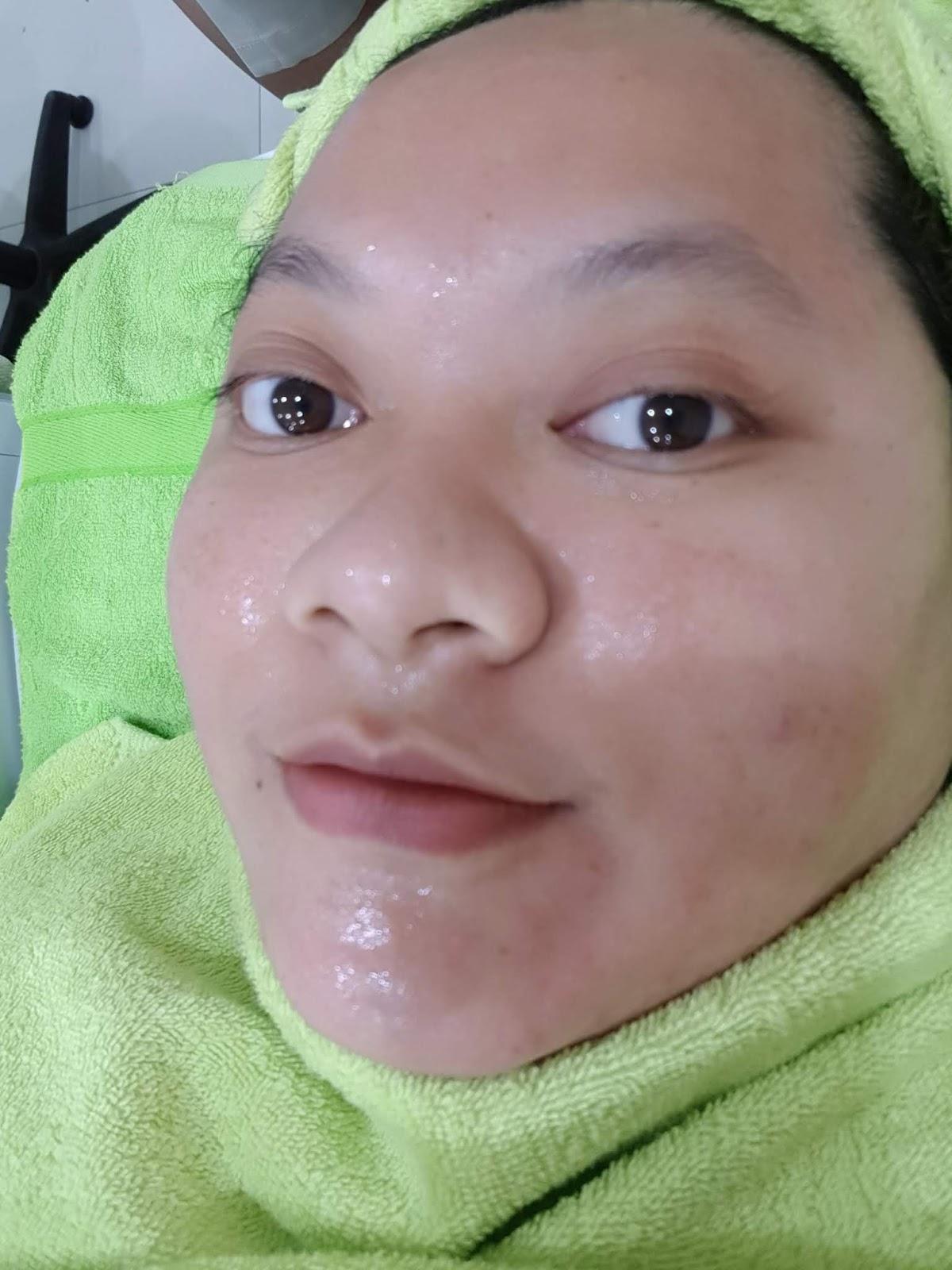 Treatment Di Naavagreen Bandung
