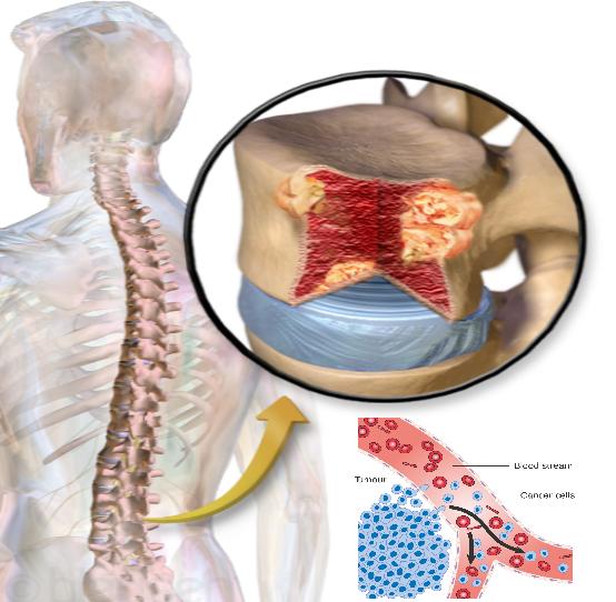 معلومات عن سرطان نخاع العظام داء المايلوم