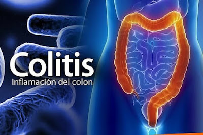Síndrome intestino irritable colitis