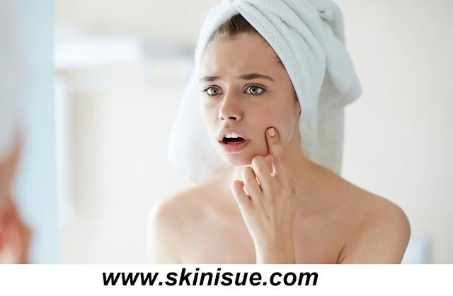 Blackheads Acne Treatment