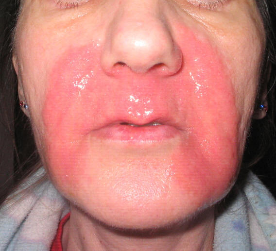 Home Treatment 101 Chemical Burns
