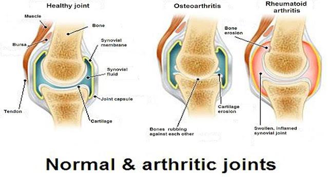 Osteoartritis, arthritic, apa itu Osteoartritis, gejala Osteoartritis, bahaya Osteoartritis, definisi Osteoartritis