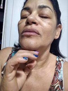 RENEW HIDRA PRO VITA -D