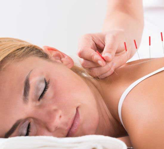 Does Acupuncture Therapy Works for Headaches? YOU SHOULD READ THIS!