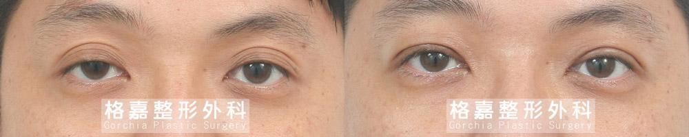 大小眼提眼肌手術台中推薦-ptosis06