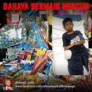 Bahaya bermain mercun... semoga adik Syafiq Haiqal Shaharrudin dipermudahkan semua urusan dan cepat sembuh...