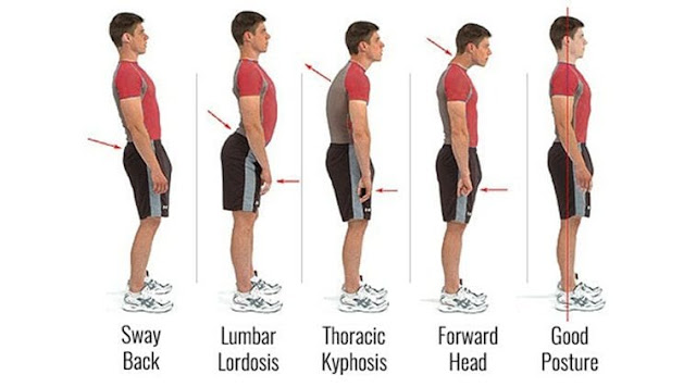 Improve Your Posture With This 30 Days Challenge