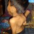 Apakah Tbc Tulang Bisa Sembuh Tanpa Operasi