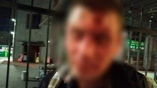 У Києві 66-річна пенсіонерка добряче відлупцювала грабіжника: фото