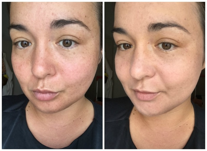 L'Oreal Paris Nude Magique Cushion Foundation Before and After Pictures