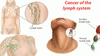 Early Signs Of Lymphoma