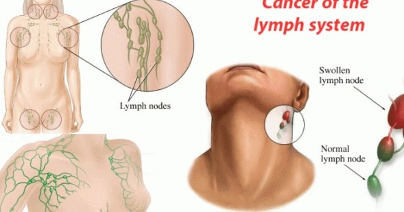 What are the Early Signs of Lymphoma