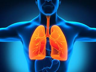 Cara Mengobati Pneumonia Pada Anak