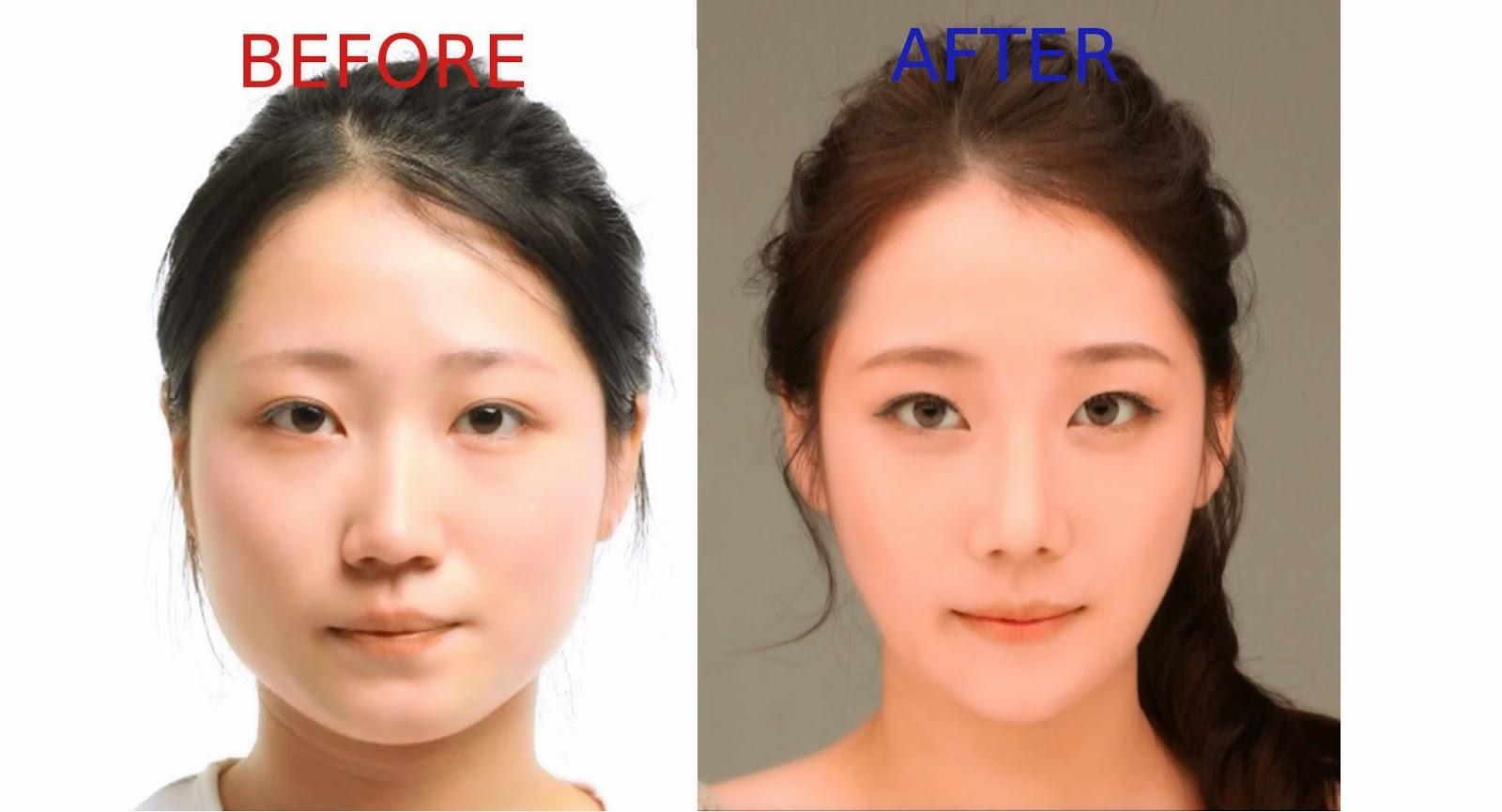 Resultado de imagen para cirugia en corea antes y despues
