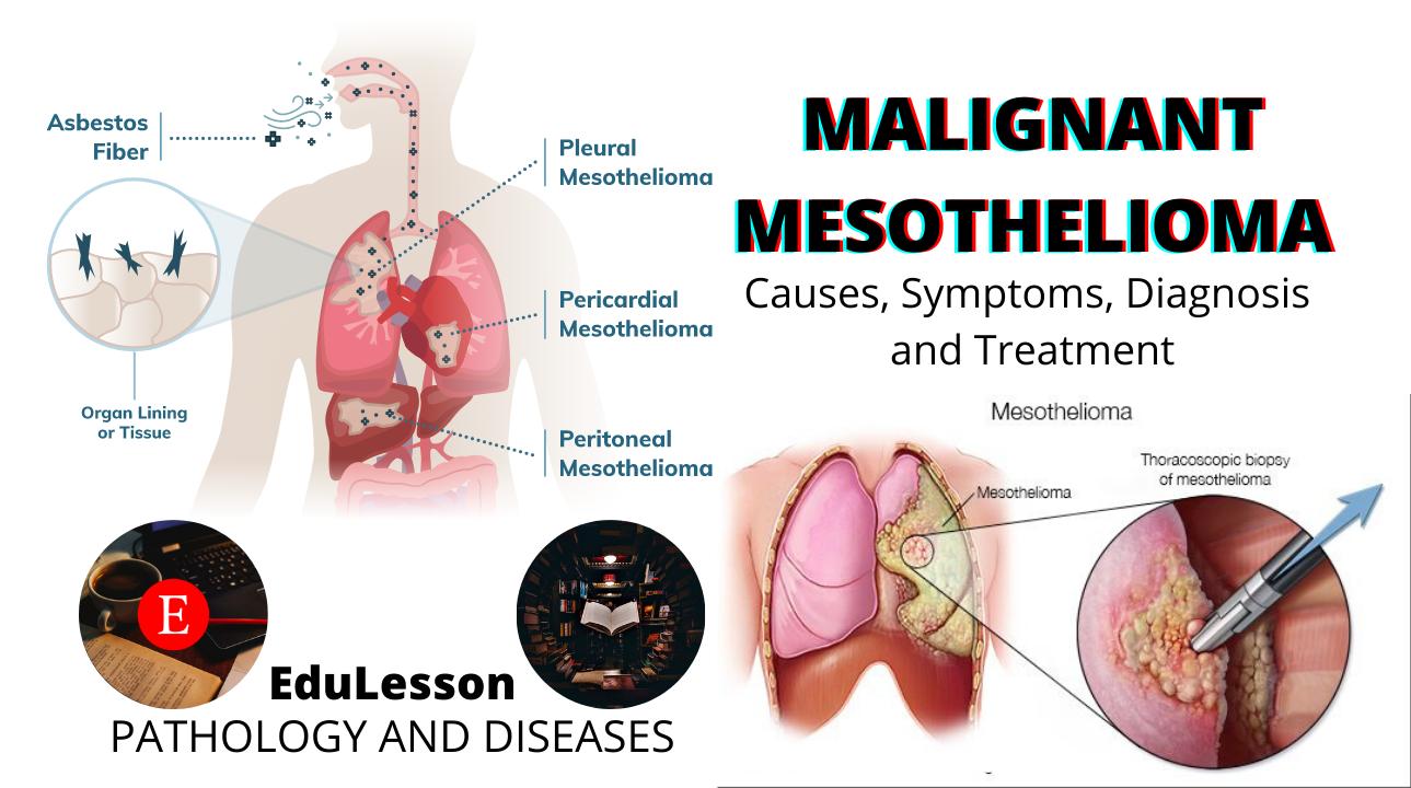 Mesothelioma pleura ( Malignant Pleural endotelioma , carcinosarcoma pleura , pleural carcinoma )