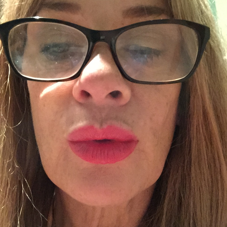 My Lips After Augmentation with Emervale( Not Juvederm Smile)