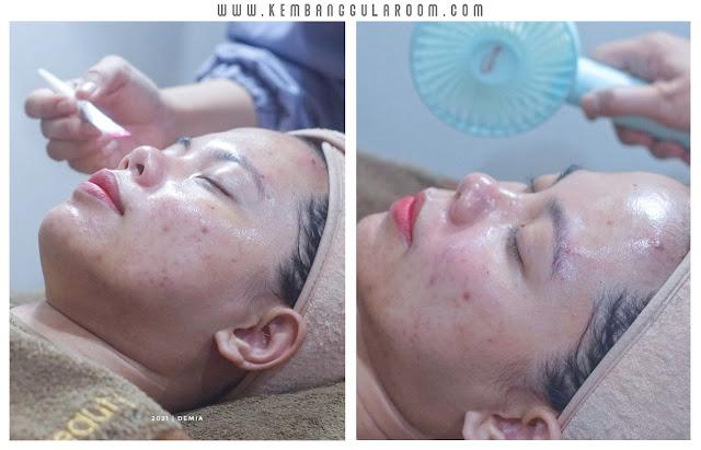 MiraBeauty Spain Acne Peel Treatment, Perawatan Kulit Berjerawat