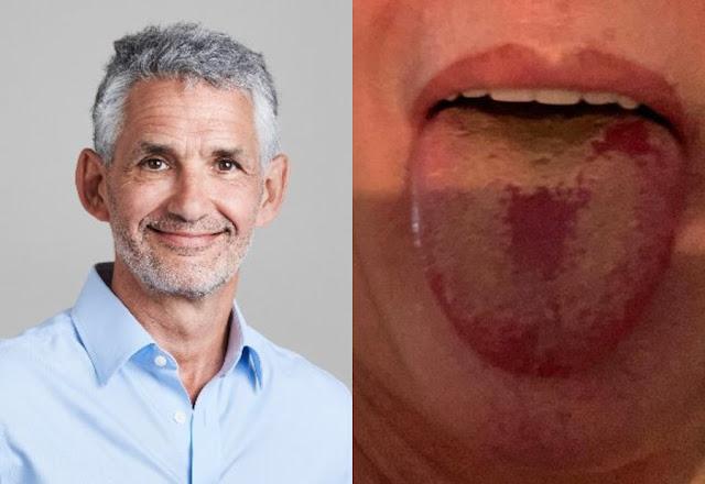 """Эпидемиолог показал, как выглядит """"ковидный язык"""", который может сигнализировать о заражении"""