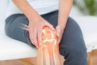 Arthritis is a name for a group of conditions affecting the joints