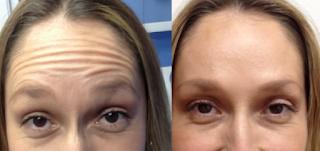 Eye And Forehead Wrinkles