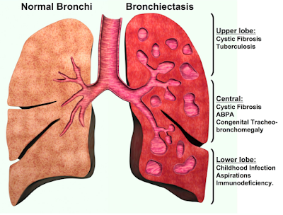 Bronchiectasis-Treatment