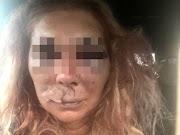 Távoltartási indítványt terjesztett elő az ügyészség a Bujákon súlyos testi sértést elkövető férfi ügyében