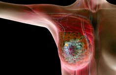 Is a lump in the breast cancer