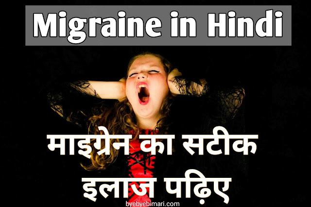 Ayurvedic treatment of migraine in home
