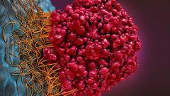 Populer - Mutasi genetik dapat beertanggung jawab untuk mendorong pembentukan tumor