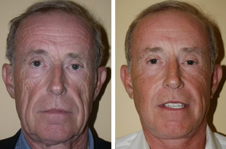 Men And Women Are Generating Serious Non Invasive Facelifts Performing Acupressure Routines Facial Yoga Remedies