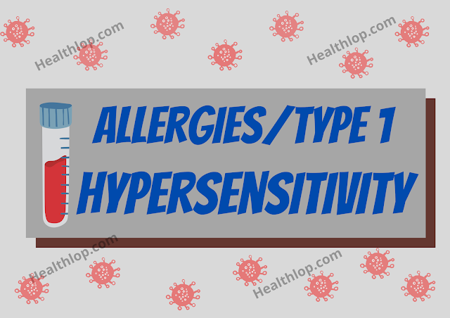 Allergies Type 1 Hypersensitivity