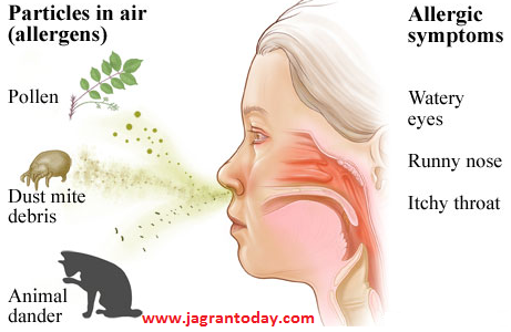 Symptoms of All Type of Allergy and Protection from Them