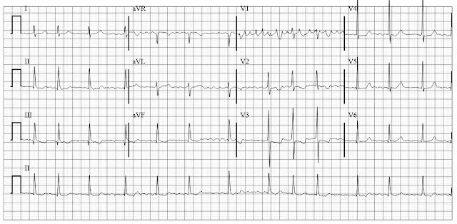 atrial fibrillation coarse