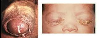 Foto Kenapa Perut Bagian Bawah Terasa Panas Dan Sakit Ujung Kelamin?